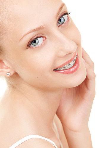 orthodontie fille