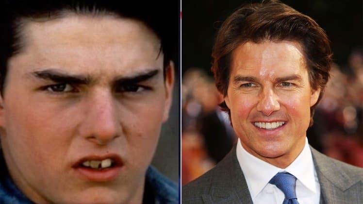 Facettes dentaires de Tom Cruise