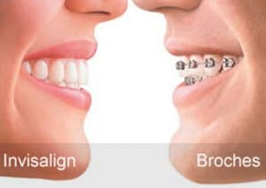 Invisalign vs broches